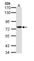 GTX111712 - XRCC1