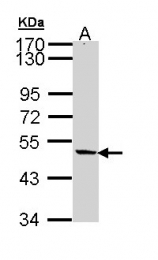 GTX111740 - ZC3HC1