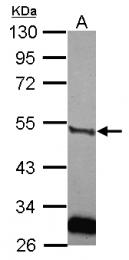 GTX111747 - uPA / PLAU
