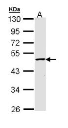 GTX111750 - Galactokinase 2