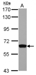 GTX111804 - GTF2H1 / BTF2