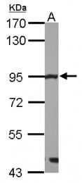 GTX111814 - MRE11