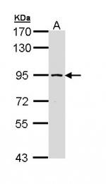 GTX111816 - SSRP1 / FACT80