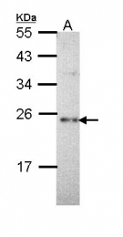 GTX111870 - Calcium-binding protein p22