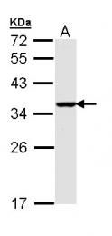GTX111876 - BNIP3L / BNIP3A