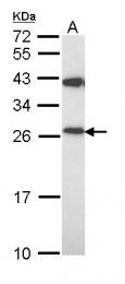 GTX111887 - Peroxiredoxin-3 / PRDX3