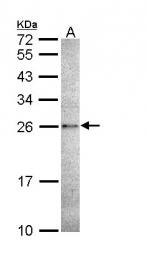 GTX111888 - Caspase-14