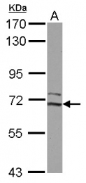 GTX111910 - CDK5RAP1