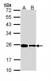 GTX111934 - RPL17