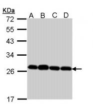 GTX112004 - Peroxiredoxin-3 / PRDX3