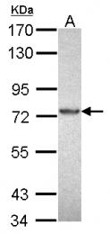 GTX112023 - PRKCI