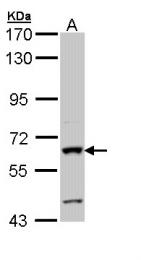 GTX112100 - Alkaline phosphatase / ALPI / IAP