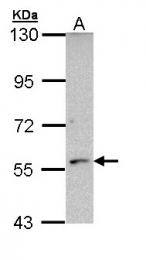 GTX112135 - CYP21A2