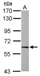 GTX112142 - Alkaline phosphatase / ALPI / IAP