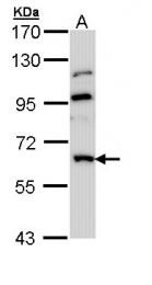 GTX112153 - MGAT3