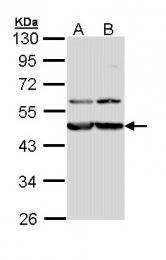 GTX112177 - Calreticulin-3