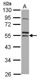 GTX112193 - RNF14