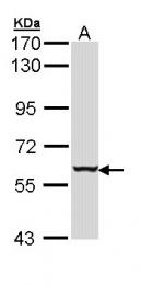 GTX112211 - Cytokeratin 4