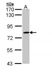 GTX112212 - AHCYL2