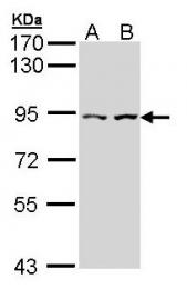 GTX112226 - alpha-Catulin