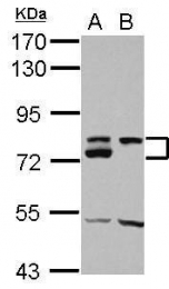 GTX112228 - DMTF1 / DMP1