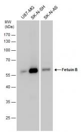 GTX112260 - Fetuin-B