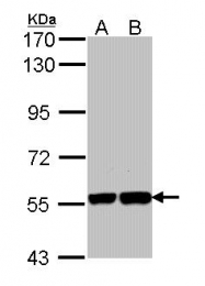 GTX112284 - KPNA1 / Importin alpha-1