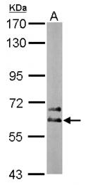 GTX112287 - DPYSL5 / CRMP5