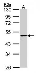 GTX112315 - Keratin-34 (KRT34)