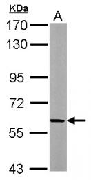 GTX112338 - Beta-adducin (ADD2)