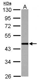 GTX112345 - CSTF1