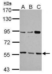 GTX112346 - HMG-CoA synthase / HMGCS