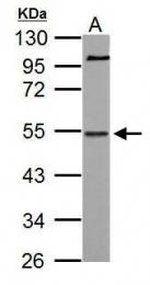 GTX112354 - NAB1