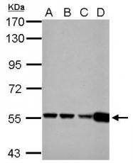 GTX112361 - Glutamate dehydrogenase 2