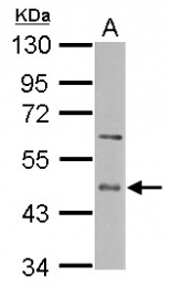 GTX112405 - CD39L4 / ENTPD5