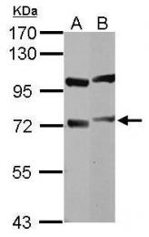 GTX112418 - DYNC1I1