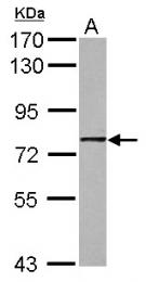 GTX112433 - GNL1 / HSR1