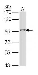 GTX112444 - INPP5B / 5PTase 2