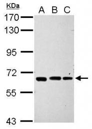 GTX112445 - IPP