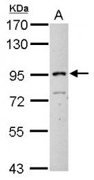 GTX112448 - ITIH3
