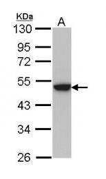 GTX112530 - Keratin-31 (KRT31)