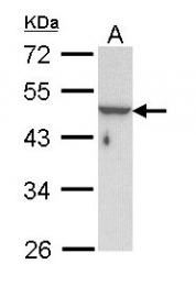 GTX112531 - Keratin-33B (KRT33B)