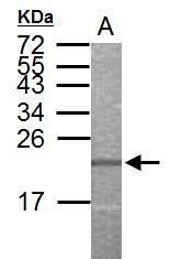 GTX112557 - ALDH3B1 / ALDH7