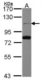 GTX112603 - CDC5L