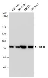 GTX112612 - EIF4B