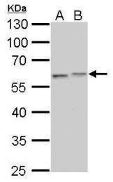 GTX112661 - Vimentin