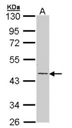 GTX112666 - Cytokeratin 19