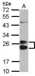 GTX112692 - Apolipoprotein A I (APO AI)