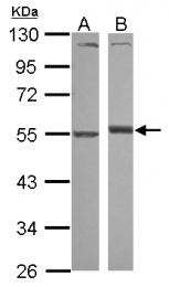GTX112707 - Alpha-1-antitrypsin