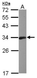 GTX112744 - Bcl-10